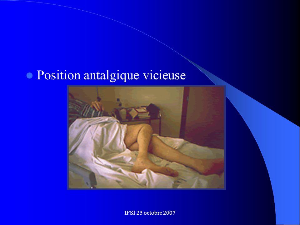 Position antalgique vicieuse