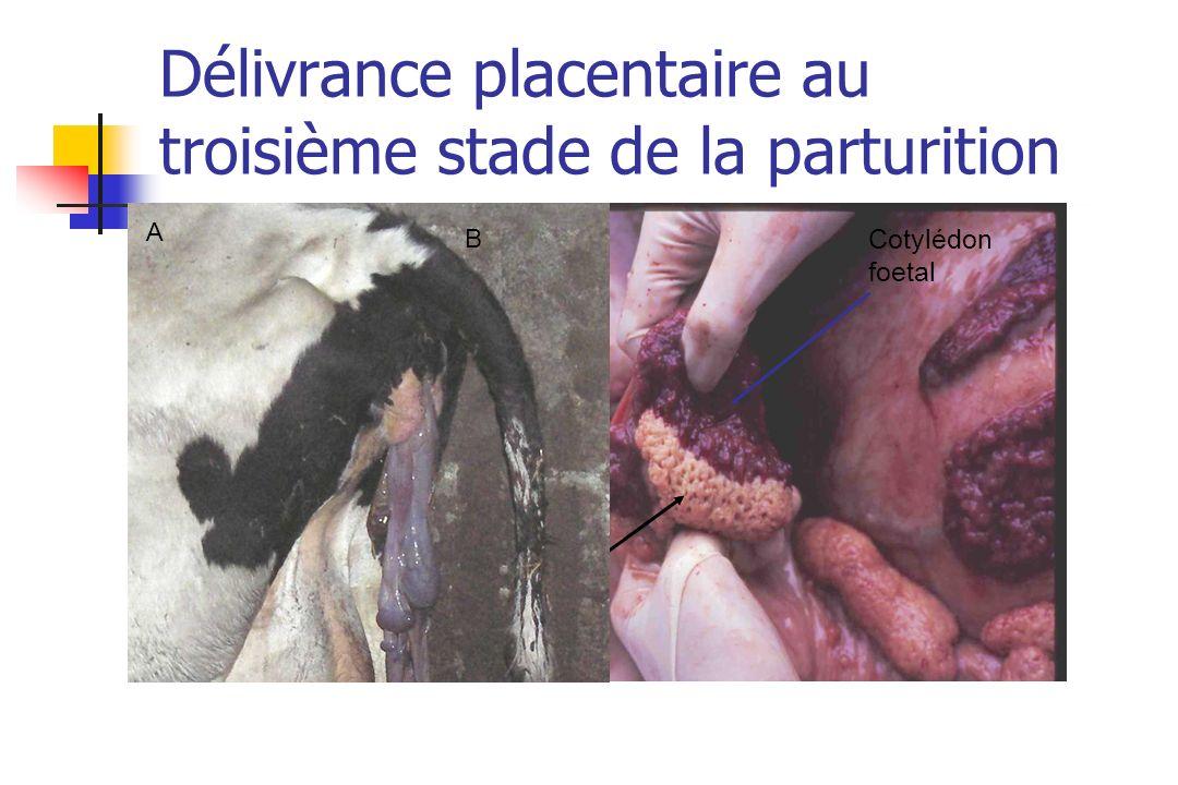 Délivrance placentaire au troisième stade de la parturition