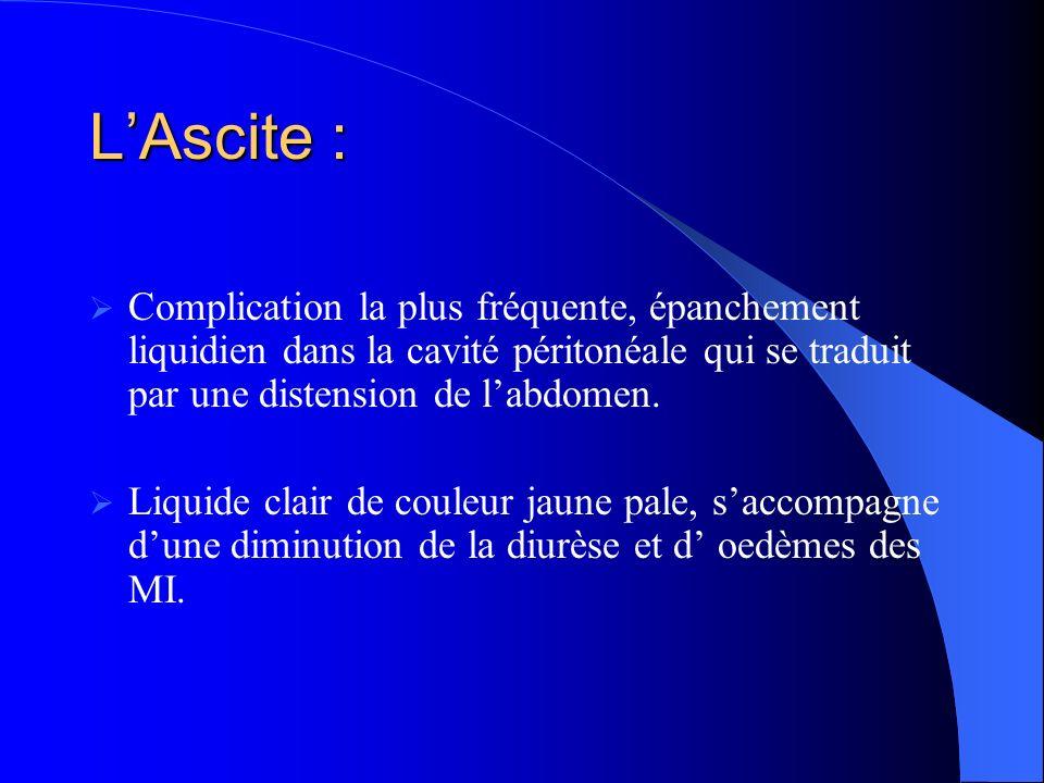 L'Ascite : Complication la plus fréquente, épanchement liquidien dans la cavité péritonéale qui se traduit par une distension de l'abdomen.