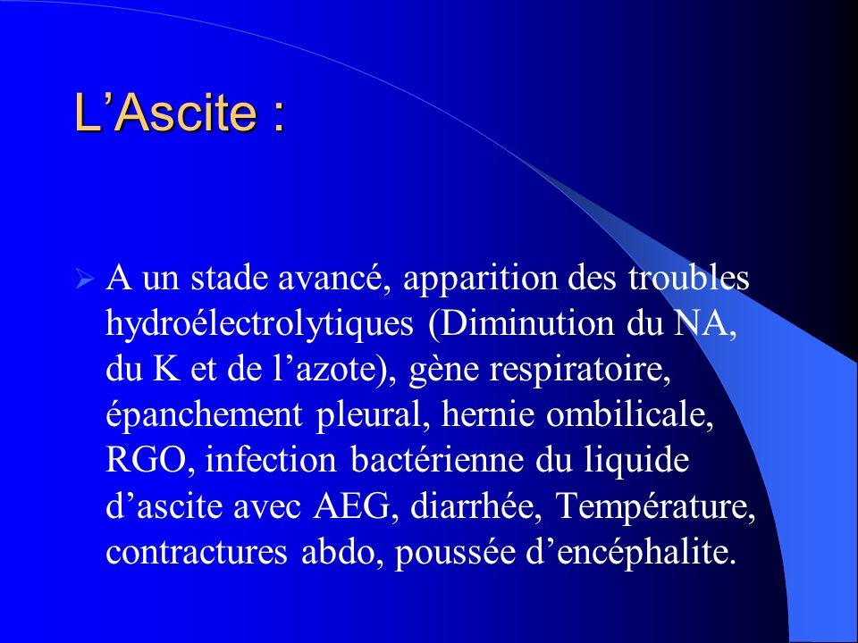 L'Ascite :