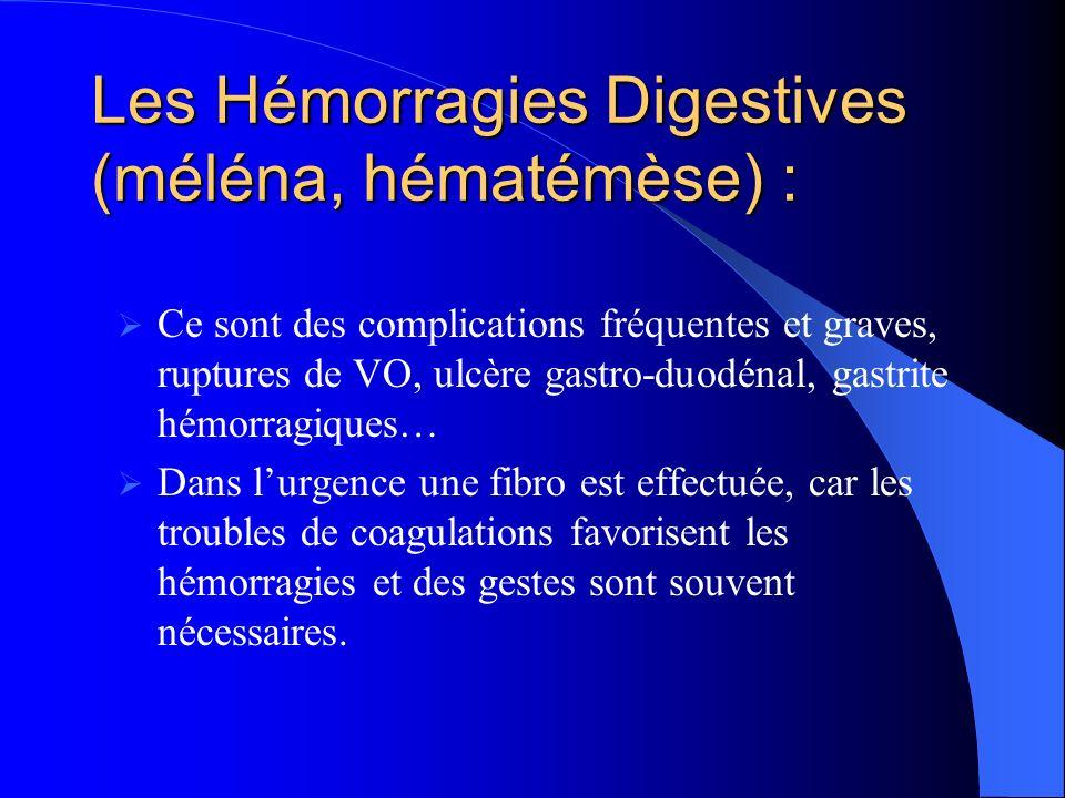 Les Hémorragies Digestives (méléna, hématémèse) :