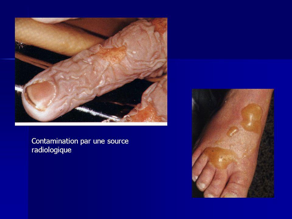 Contamination par une source radiologique
