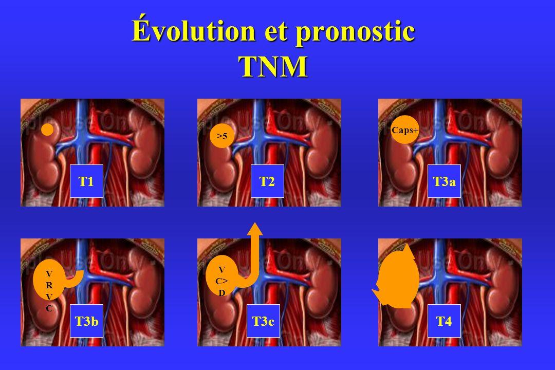 Évolution et pronostic TNM