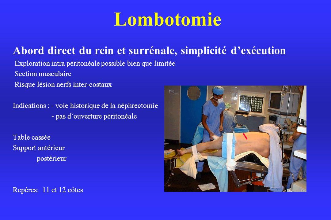 Lombotomie Abord direct du rein et surrénale, simplicité d'exécution