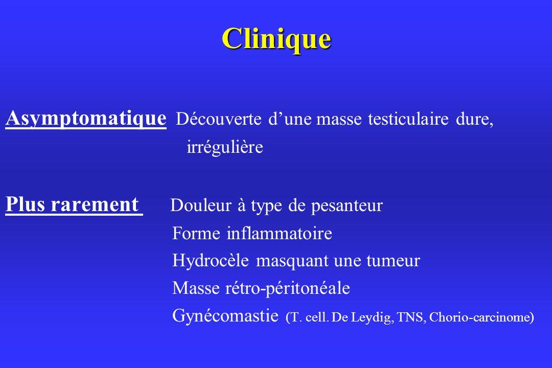 Clinique Asymptomatique Découverte d'une masse testiculaire dure,
