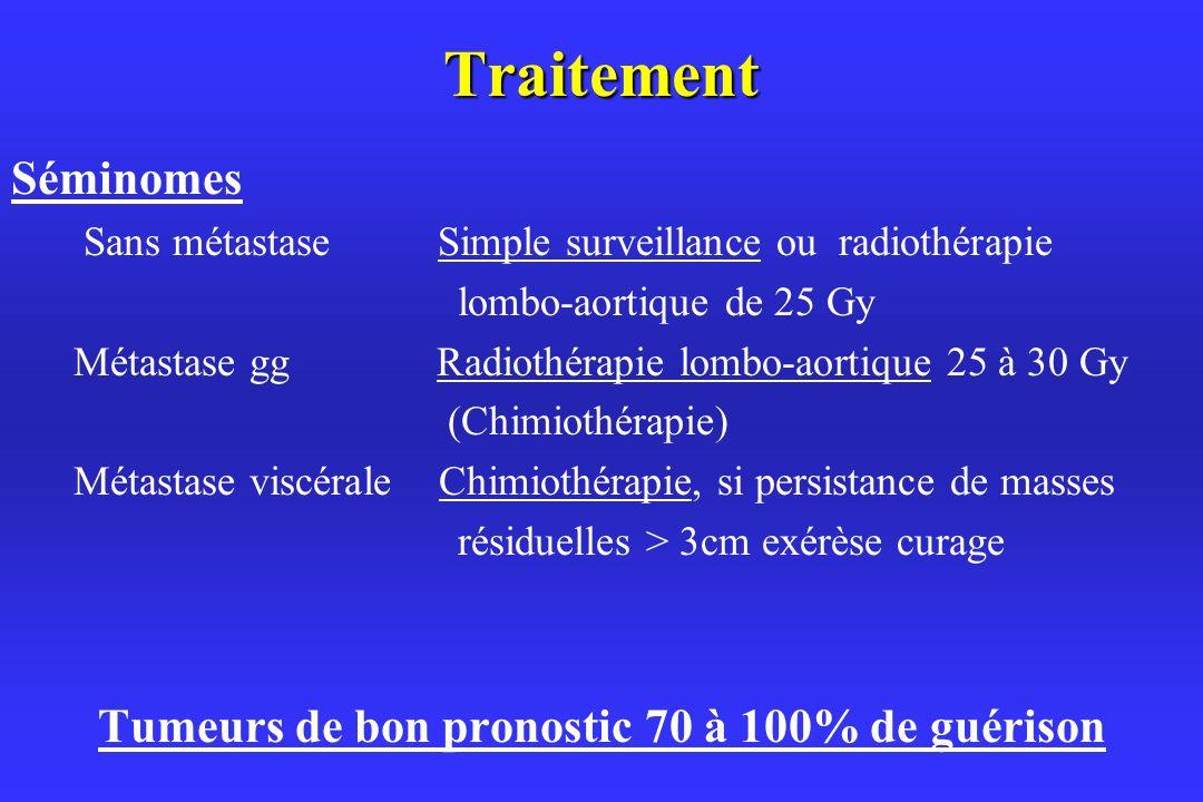 Tumeurs de bon pronostic 70 à 100% de guérison