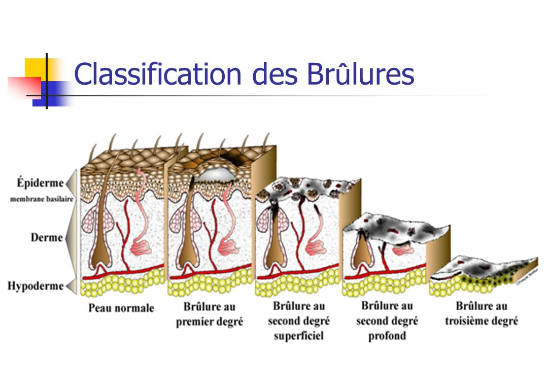 Classification des Brûlures
