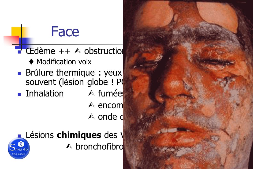 Face Œdème ++  obstruction VAS ! I/Vm rapide…