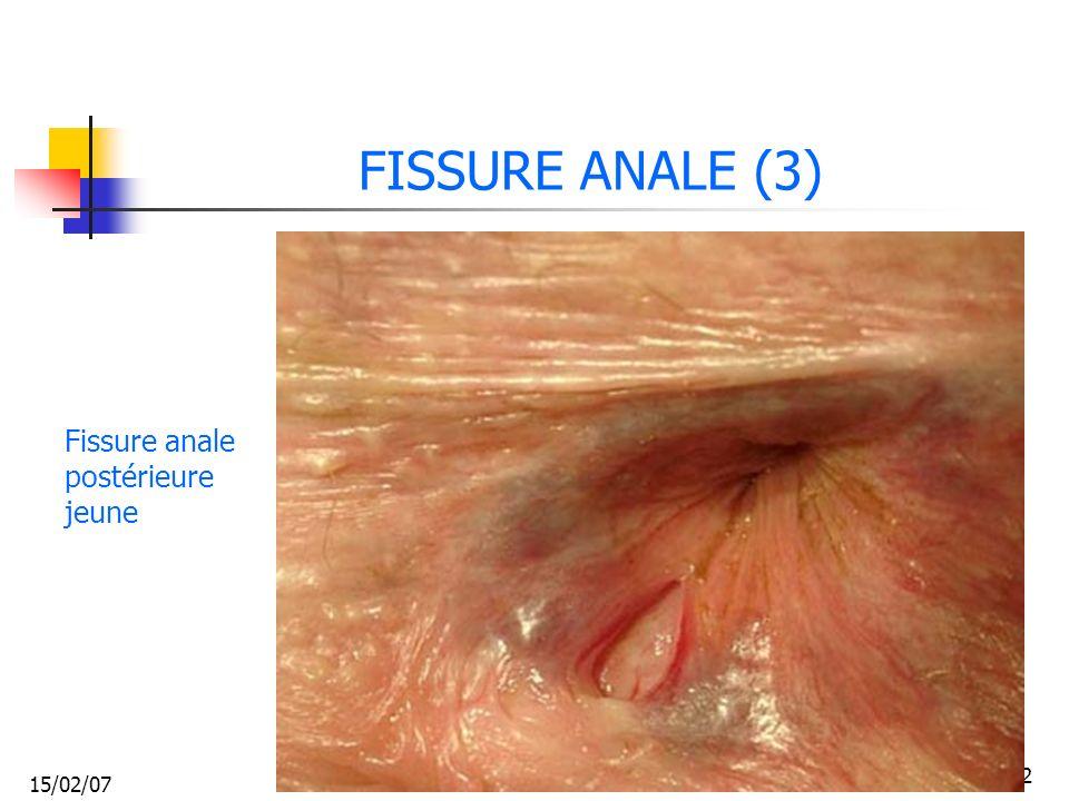FISSURE ANALE (3) Fissure anale postérieure jeune 15/02/07