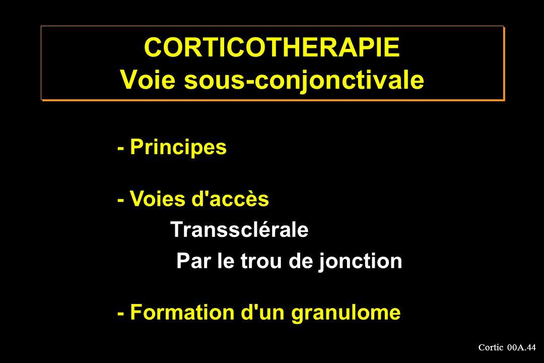 CORTICOTHERAPIE Voie sous-conjonctivale