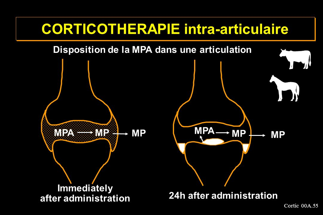 CORTICOTHERAPIE intra-articulaire