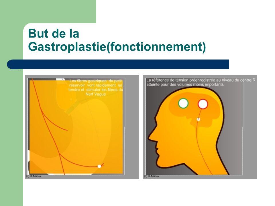 But de la Gastroplastie(fonctionnement)