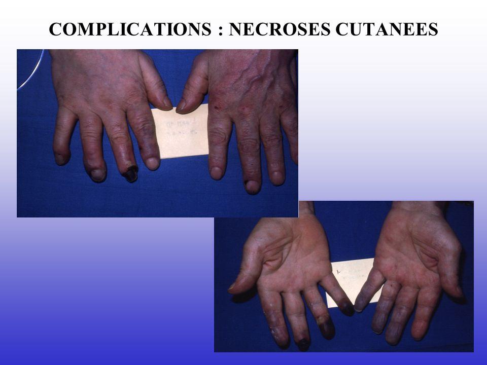 COMPLICATIONS : NECROSES CUTANEES
