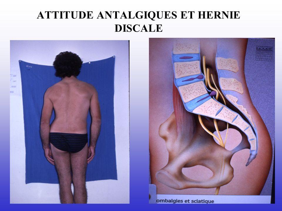 ATTITUDE ANTALGIQUES ET HERNIE DISCALE