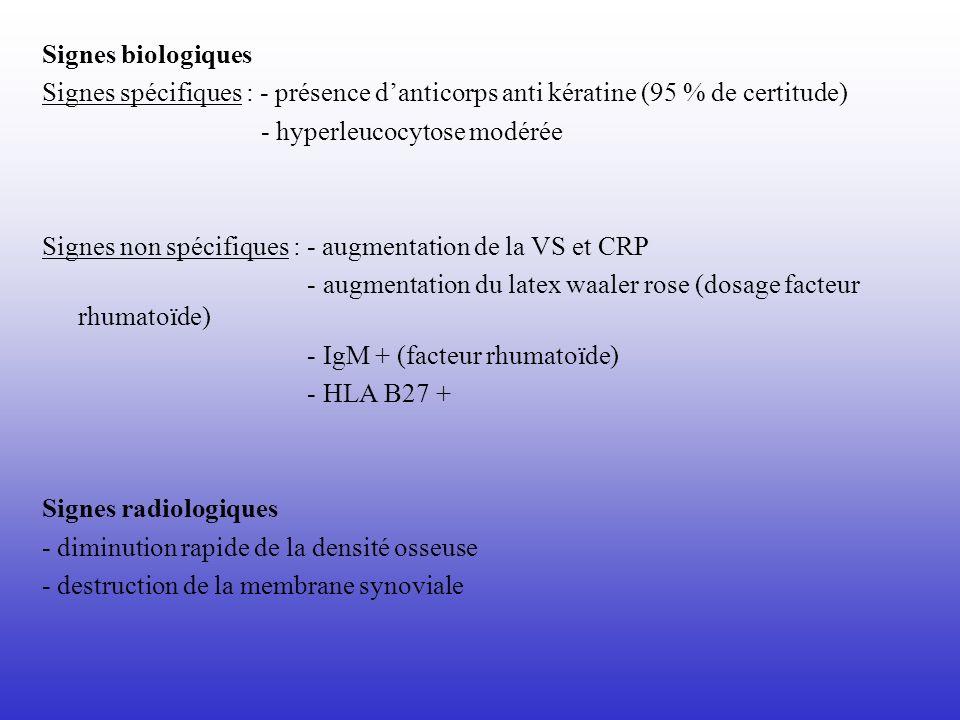 Signes biologiques Signes spécifiques : - présence d'anticorps anti kératine (95 % de certitude) - hyperleucocytose modérée.