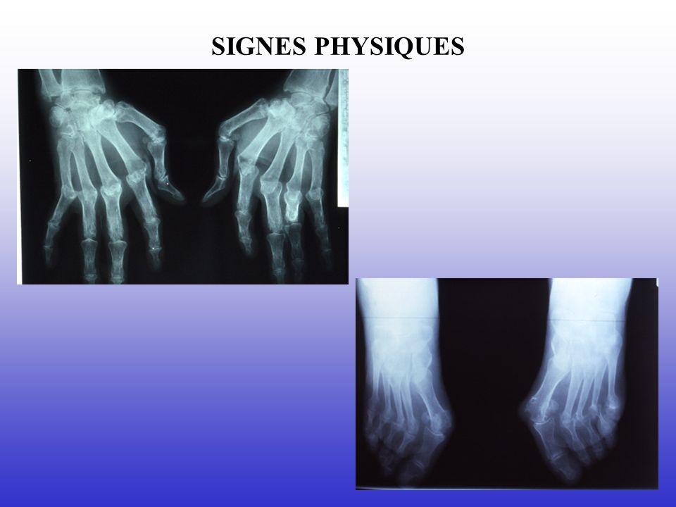 SIGNES PHYSIQUES