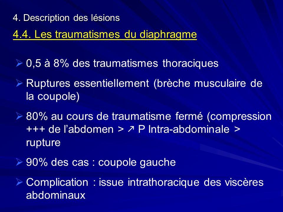 4.4. Les traumatismes du diaphragme