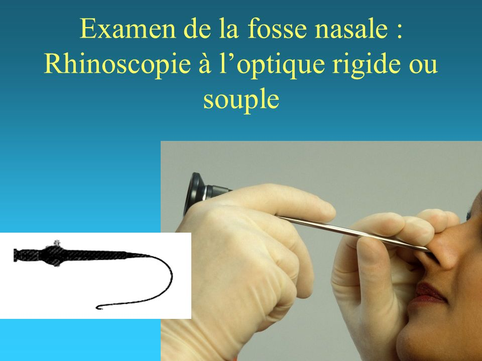 Examen de la fosse nasale : Rhinoscopie à l'optique rigide ou souple