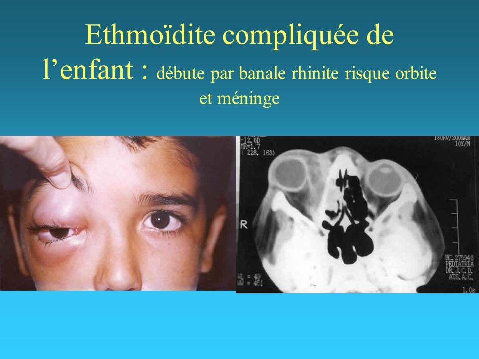 Ethmoïdite compliquée de l'enfant : débute par banale rhinite risque orbite et méninge