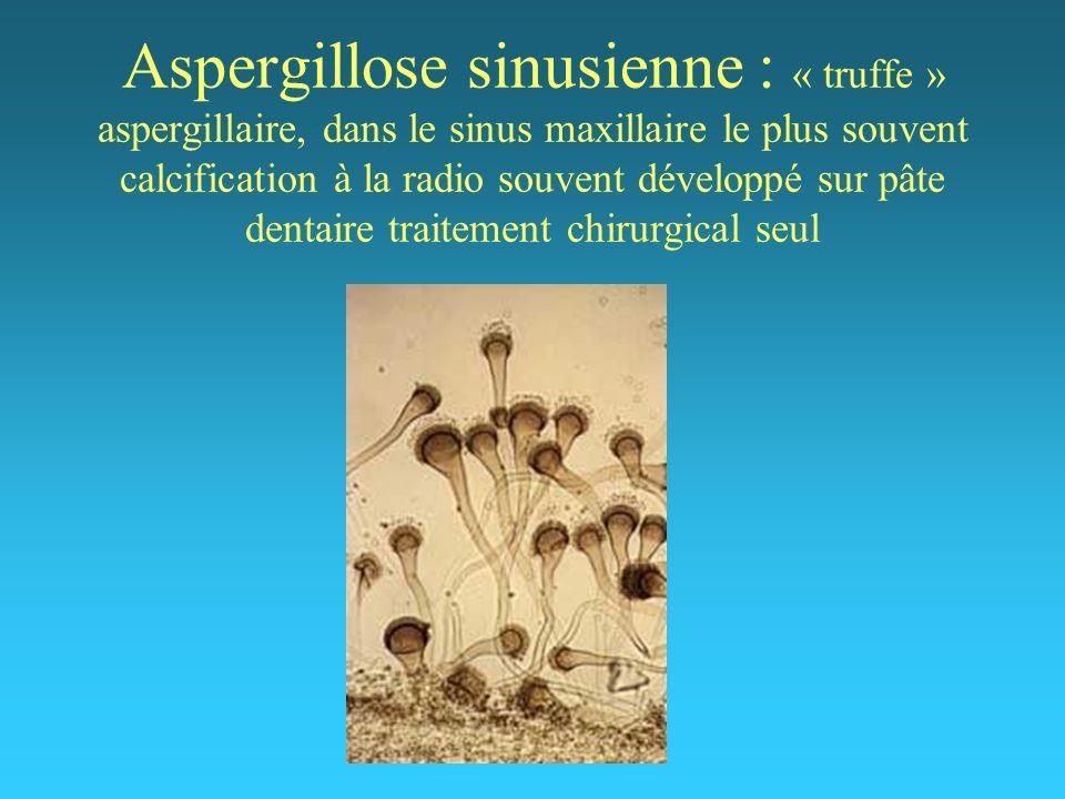 Aspergillose sinusienne : « truffe » aspergillaire, dans le sinus maxillaire le plus souvent calcification à la radio souvent développé sur pâte dentaire traitement chirurgical seul