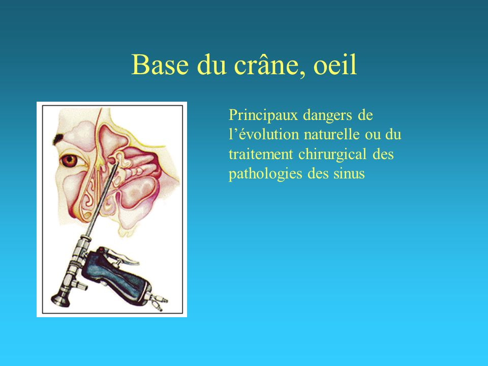 Base du crâne, oeil Principaux dangers de l'évolution naturelle ou du traitement chirurgical des pathologies des sinus.