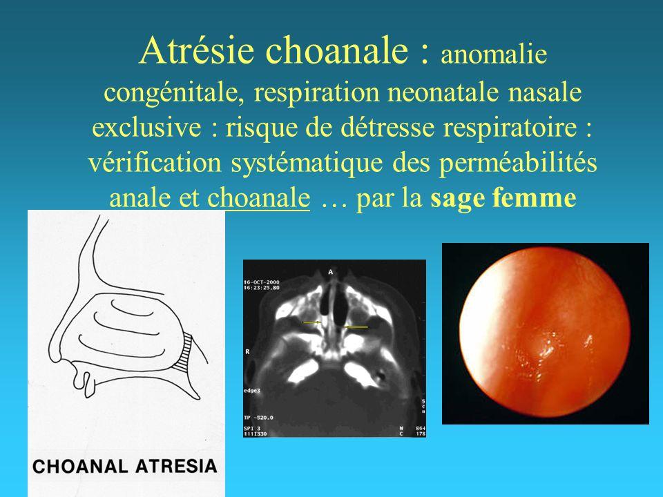 Atrésie choanale : anomalie congénitale, respiration neonatale nasale exclusive : risque de détresse respiratoire : vérification systématique des perméabilités anale et choanale … par la sage femme