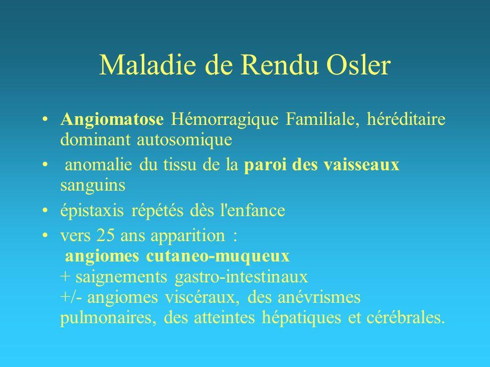 Maladie de Rendu Osler Angiomatose Hémorragique Familiale, héréditaire dominant autosomique. anomalie du tissu de la paroi des vaisseaux sanguins.