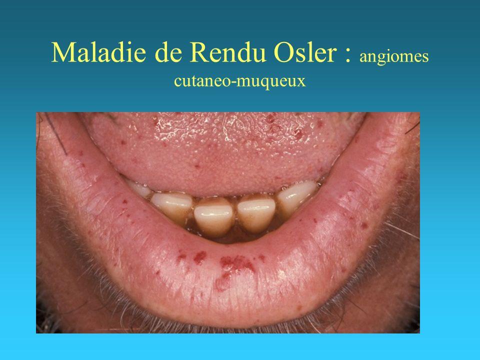 Maladie de Rendu Osler : angiomes cutaneo-muqueux
