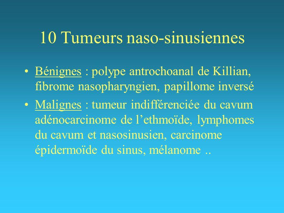 10 Tumeurs naso-sinusiennes