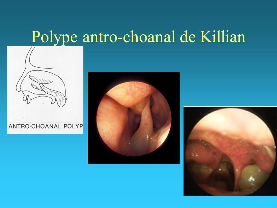 Polype antro-choanal de Killian