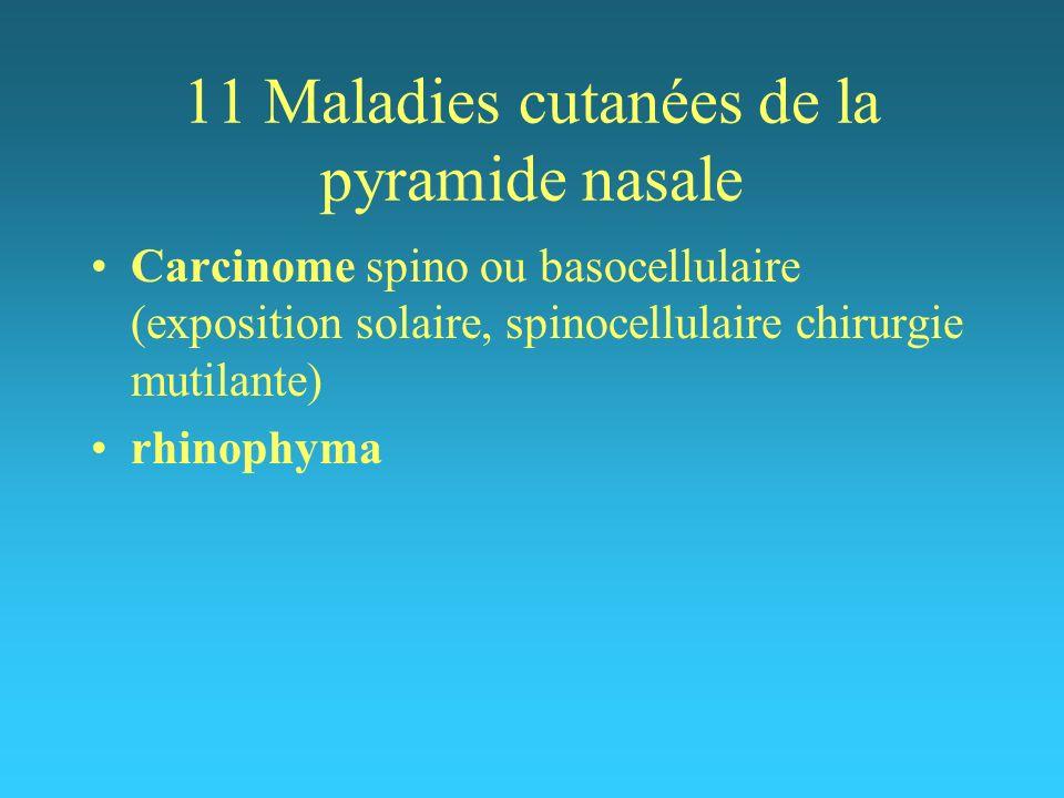 11 Maladies cutanées de la pyramide nasale