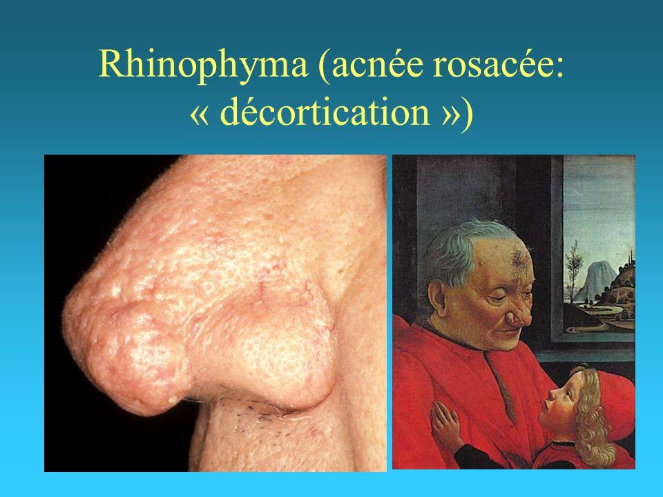 Rhinophyma (acnée rosacée: « décortication »)