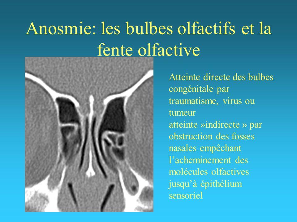 Anosmie: les bulbes olfactifs et la fente olfactive