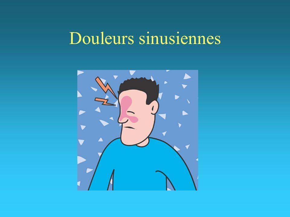 Douleurs sinusiennes