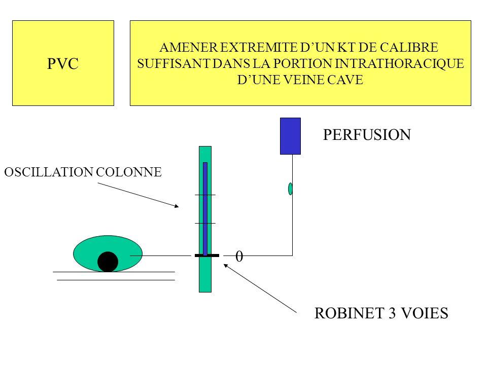 PVC PERFUSION ROBINET 3 VOIES AMENER EXTREMITE D'UN KT DE CALIBRE