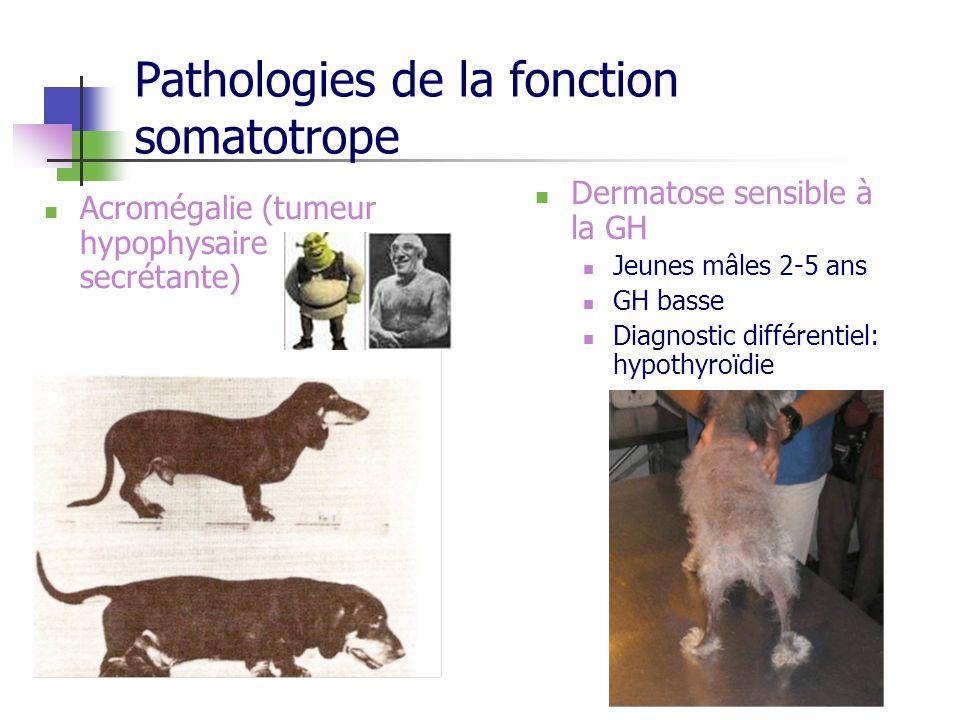 Pathologies de la fonction somatotrope
