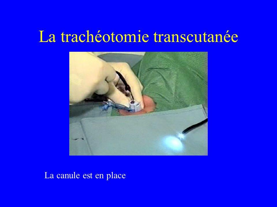 La trachéotomie transcutanée