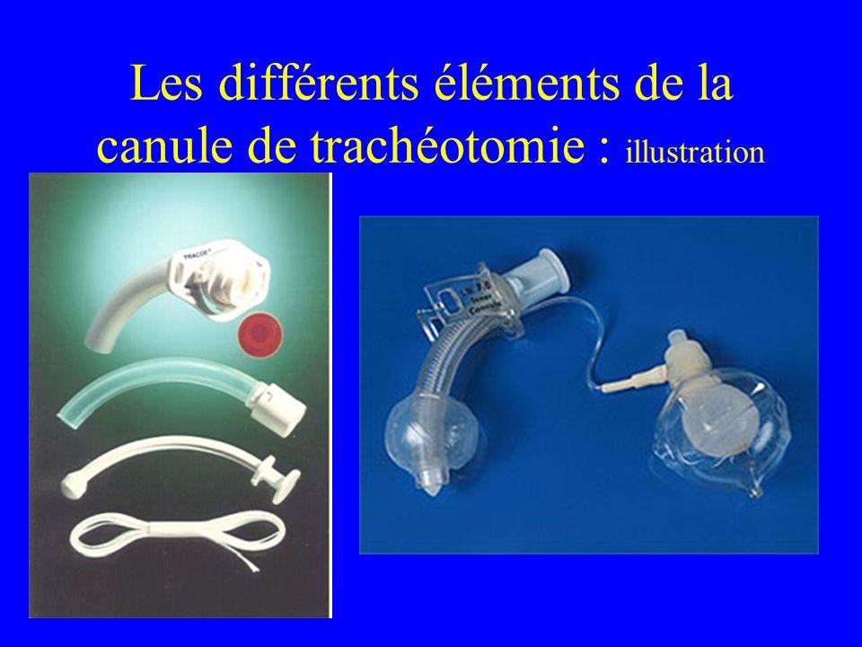 Les différents éléments de la canule de trachéotomie : illustration