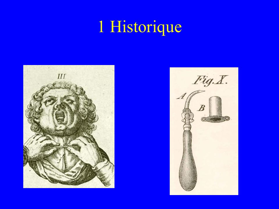 1 Historique