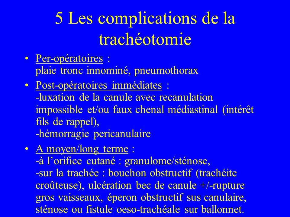 5 Les complications de la trachéotomie