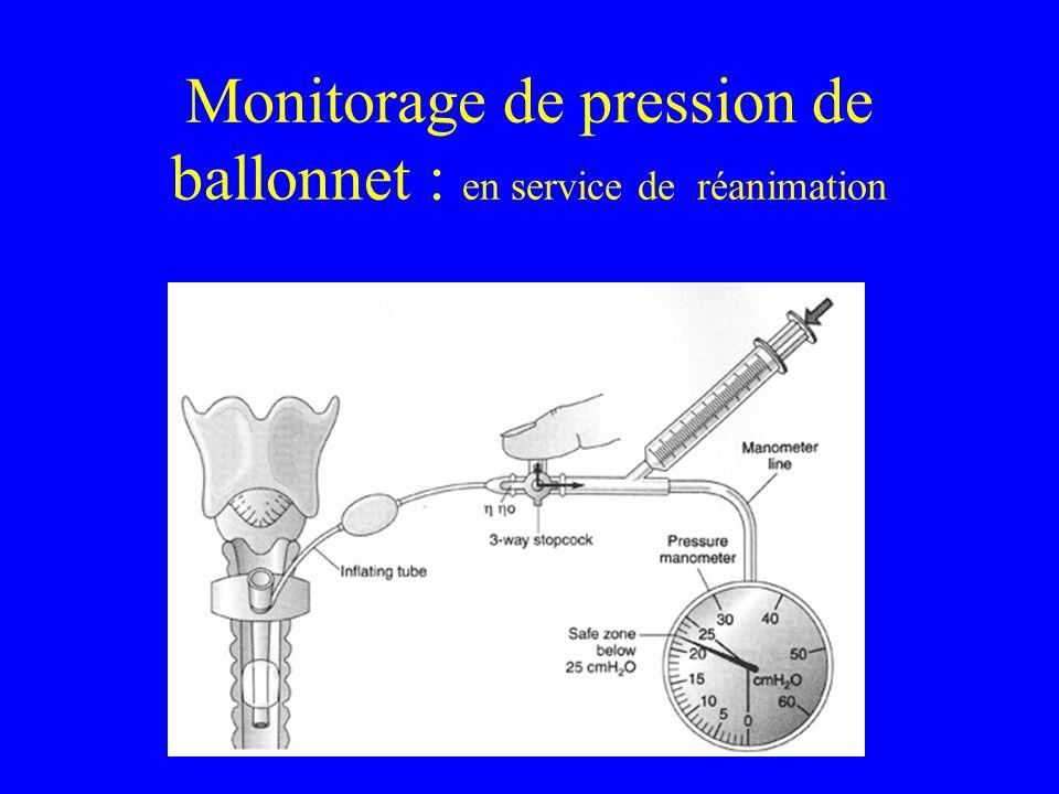 Monitorage de pression de ballonnet : en service de réanimation