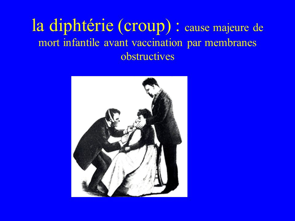 la diphtérie (croup) : cause majeure de mort infantile avant vaccination par membranes obstructives