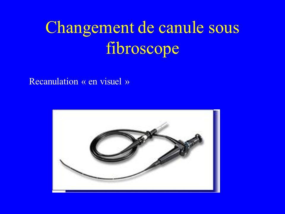 Changement de canule sous fibroscope