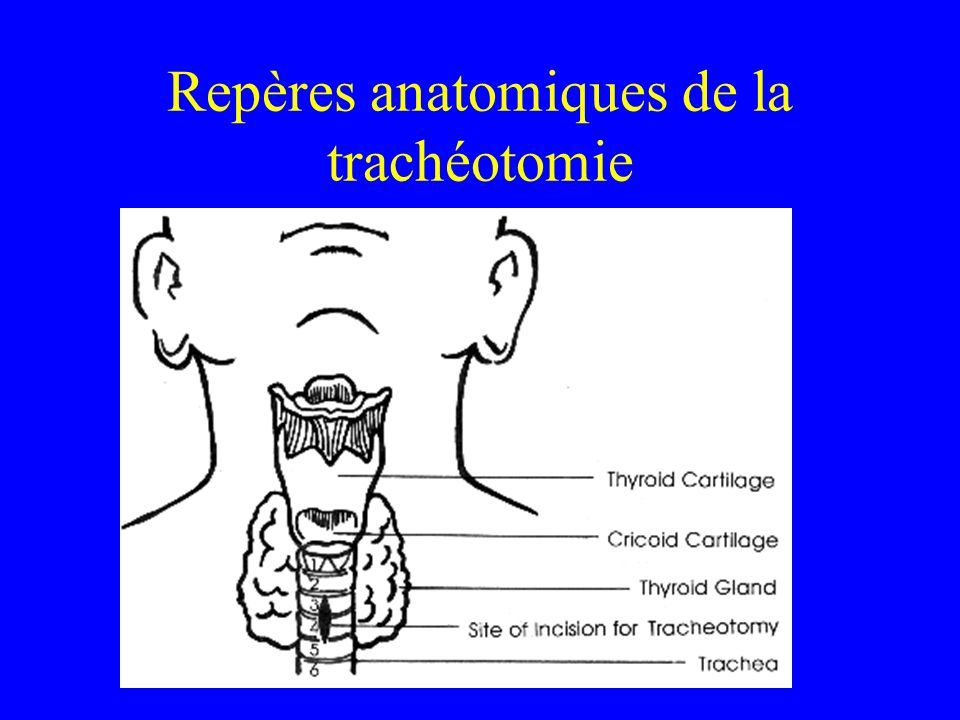 Repères anatomiques de la trachéotomie