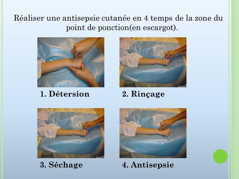 Réaliser une antisepsie cutanée en 4 temps de la zone du point de ponction(en escargot).