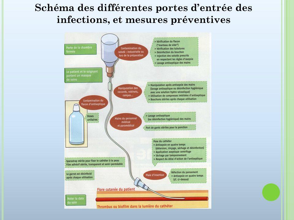 Schéma des différentes portes d'entrée des infections, et mesures préventives