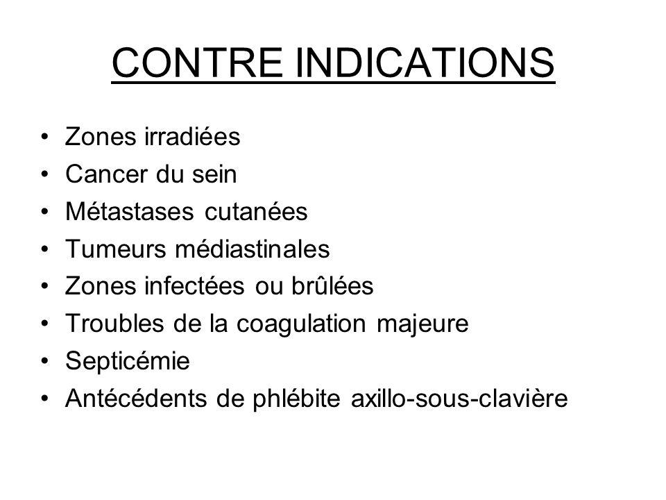 CONTRE INDICATIONS Zones irradiées Cancer du sein Métastases cutanées