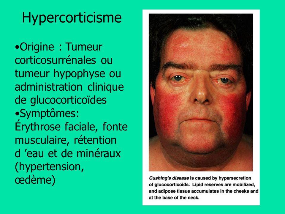 Hypercorticisme Origine : Tumeur corticosurrénales ou tumeur hypophyse ou administration clinique de glucocorticoïdes.