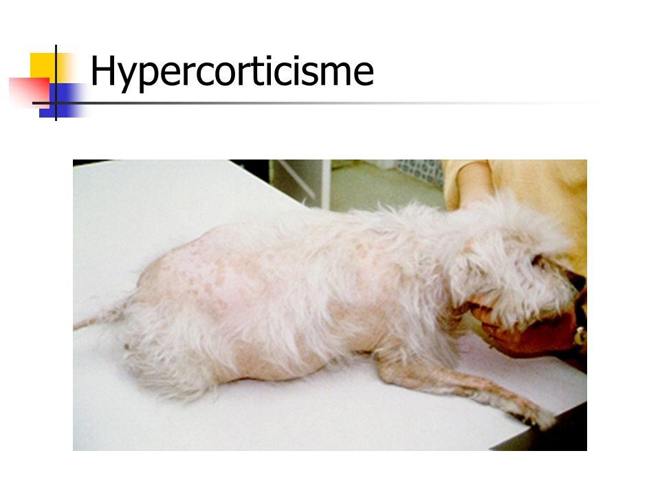 Hypercorticisme
