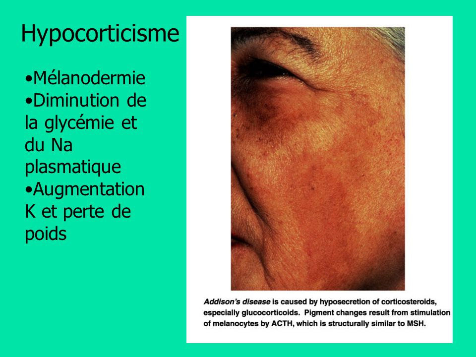 Hypocorticisme Mélanodermie